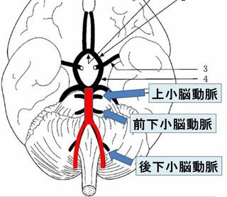 脳血管.jpg